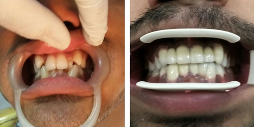 anterior crowding correction with crown and bridge