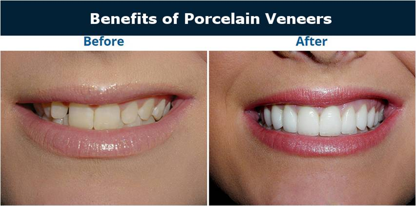 benefits of veneers