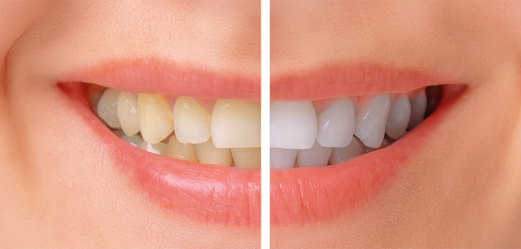 teeth bleaching i gurgaon