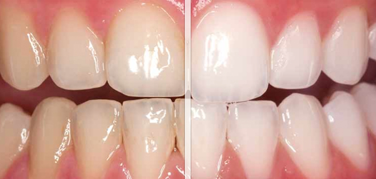 teeth whitening in gurgaon