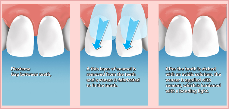 dental veneers in gurgaon